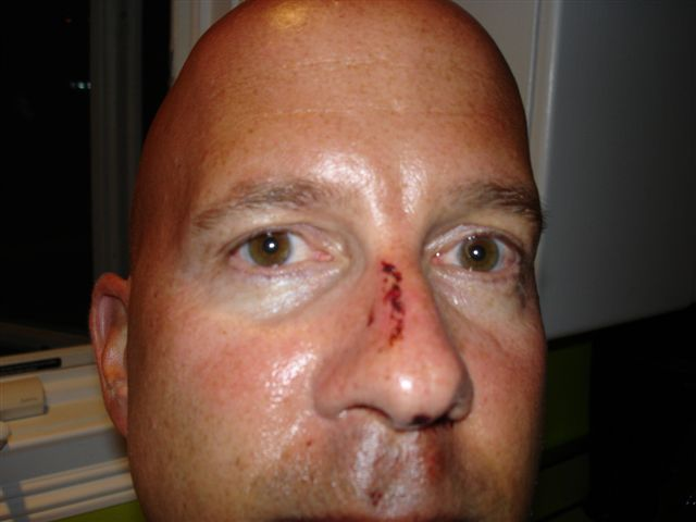 Barry Scott's nose 8 hours after injury as no mug shot was taken by nervous police.