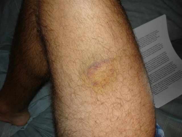 One of many bruises from kicks to Barry's legs by steel police boots.